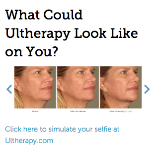 Ultherapy - Renew Medical Aesthetics - Screen_Shot_2017-02-02_at_2